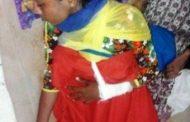 চকরিয়ায় বখাটের ছুরিকাঘাতে আহত মাদ্রাসা ছাত্রীর বাবাকে মামলা না করতে হুমকী